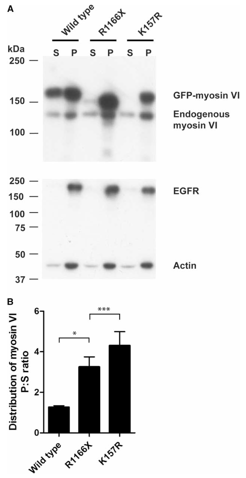 R1166X mutation increases the amount of myosin VI in the cytosol pellet fraction. ( A ) RPE cells were transfected with WT full-length GFP-tagged myosin VI-NI, myosin VI R1166X and the rigor mutant, K157R and the distribution of myosin VI and loading controls, EGFR and actin, between supernatant (S) and pellet (P) was analysed by an actin pelleting assay followed by quantitative immunoblotting. ( B ) Quantitative immunoblotting of myosin VI distribution between pellet and supernatant fractions is shown (±SEM, n = 5, *** P