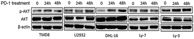 <t>PD-1/PD-L1</t> binding directly activates the intracellular AKT/mTOR oncogene signaling in DLBCL cells