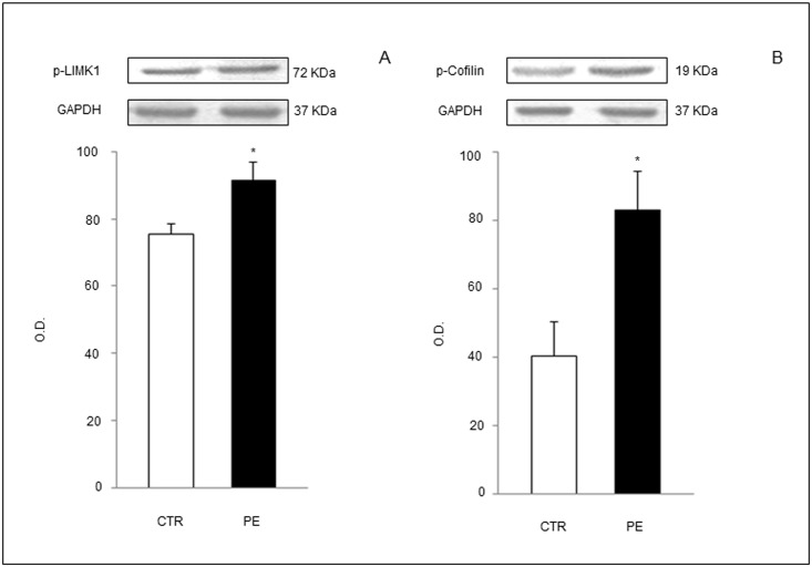 Western blot analysis of proteins involved in intracellular pathway initiated by D6 engagement by active ligands and leading to cofilin-inactivation and actin filaments depolymerization. Phosphorylated (p)-LIMK1 (A) and p-Cofilin (B) were increased in trophoblast cell lysates from PE patients compared to controls. <t>GAPDH:</t> <t>glyceraldehyde-3-phosphate</t> dehydrogenase (loading control). Results are expressed as mean ± SE of six experiments. *p
