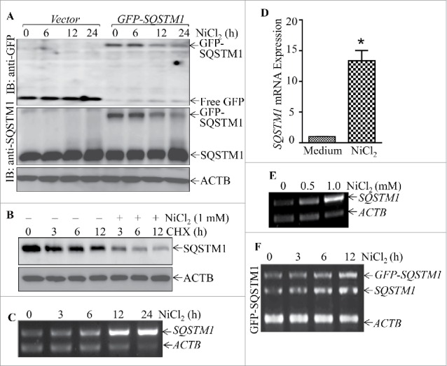 Nickel induced SQSTM1 transcription in Beas-2B cells. (A) 2×10 5 stable Beas-2B( GFP ) and Beas-2B( GFP-SQSTM1 ) transfectants, as indicated, were seeded into each well of 6-well plates. The cells were exposed to 1.0 mM NiCl 2 for the indicated time points. The cells were extracted with SDS-sample buffer and western blot was carried out. ACTB was used as protein loading control. (B) Beas-2B cells were treated with CHX (50 μg/ml) together with or without NiCl 2 for the indicated times. The cell extracts were subjected to analysis of SQSTM1 protein degradation rate by western Blotting. (C, E and F) Beas-2B cells were exposed to 1.0 mM NiCl 2 for different time points, as indicated (C), or treated with the indicated doses of NiCl 2 for 12 h (E). The stable Beas-2B( GFP-SQSTM1 ) cells were exposed to 1.0 mM of NiCl 2 for the indicated time periods (F). The cells collected from (C-F) were extracted with Trizol reagent for total RNA isolation and RT-PCR was performed to determine SQSTM1 or GFP-SQSTM1 expression with their specific primers. ACTB was used as an internal control. (D) Real-time PCR was carried out to determine the SQSTM1 mRNA expression using cDNA samples collected from Beas-2B cells exposed to 1.0 mM NiCl 2 for 24 h obtained in (C). The symbol (*) indicates a significant increase as compared with the medium control ( p