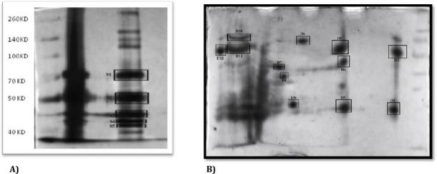 A) Image of cellular targets of EPO in mouse brain separated by <t>SDS-PAGE</t> in a 12 % gel. Gel was stained by Silver. B)Image of cellular targets of EPO in mouse brain separated by IEF in a 7 cm IPG strip containing nonlinear pH gradient 3–10 followed by two-dimensional gel electrophoresis. Protein detection was by Silver-staining