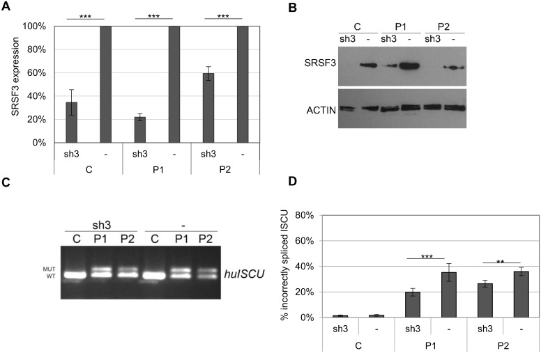 Incorrect splicing of ISCU in myoblasts with decreased SRSF3 expression. A lentivirus-mediated expression vector for SRSF3 shRNA (sh3) was introduced into myoblasts from HML patients (P1, P2) and a healthy control (C). A) SRSF3 qRTPCR using cDNA from uninfected myoblasts (-) and myoblasts infected with a shSRSF3 lentivirus-mediated expression vector. The graph present the mean fold change ± SD for the SRSF3 expression from at least three independent experiments. β-actin was used as an internal control. B) Western blot of SRSF3 in non-transduced and transduced myoblasts. ACTIN was used as a loading reference. C) Semi-qRTPCR of human ISCU with incorrect (MUT) and correct (WT) splice variants from uninfected myoblasts, (-) or myoblasts infected with lentivirus-mediated vectors expressing shSRSF3 (sh3). D) Quantification of incorrectly spliced ISCU by qRTPCR in in non-transduced and transduced myoblasts. The graph presents the mean percentage of incorrectly spliced ISCU ± SD from at least three independent experiments (* p