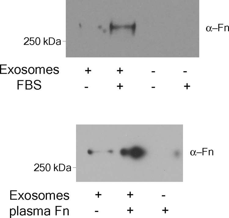 Trabecular meshwork (TM) exosomes bind fibronectin on the external surface. Serum-free medium was conditioned for 2.5 hours with primary TM cell cultures. Conditioned media was split in half and either <t>exosome-depleted</t> <t>FBS</t> (10% final v:v) or purified human plasma fibronectin (Fn, 2.5μg/ml [final]) was added to one portion. Exosomes were prepared from both portions (and from unconditioned media + FBS or purified Fn) and Fn content was assessed by Western blot. The blots shown represent the results from a minimum 3 biological replicates (cell strains isolated from different human donors).