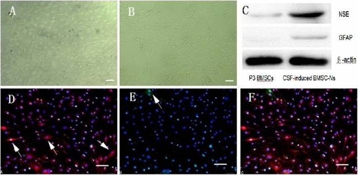 Characteristics of hCSF-induced rat BMSC-differentiated neuron-like cells . (A,B) show post-induction by hCSF at day 1 and 4 (40×). Scale bar = 100 μm. (C) The protein levels were measured by a GELDOC instrument and normalized with respect to β-actin, which was chosen as an internal control. Each experiment was repeated at least three times. Variations in protein expression are given as arbitrary units. The expression of NES in cells induced by hCSF (0.43 ± 0.07) was significantly higher than that of P3-generation BMSCs (0.09 ± 0.03); meanwhile, GFAP also had small amount of expression (0.09 ± 0.02). However, P3-generation of BMSCs almost did not express GFAP (0 ± 0). (D–F) show Cells were positive for both NSE and GFAP, but expression levels for NSE were higher than GFAP. Western blot analysis of NSE and GFAP protein expression (200×). Scale bar = 100 μm.