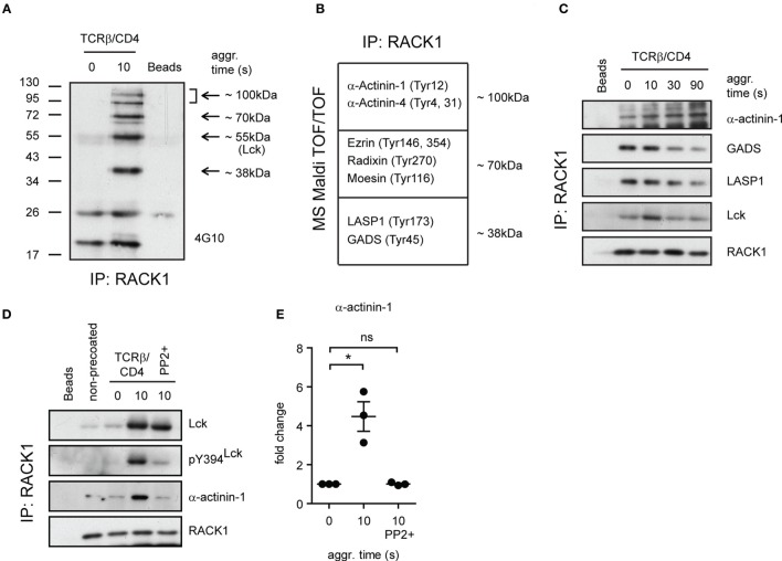 Identification of additional components of RACK1–Lck complexes . (A) RACK1 immunoprecipitates from non-activated (0 s) and activated (10 s) CD4 + T-cell samples, and beads alone, were probed with anti-pY antibody (4G10). The arrows point to areas that show readily detectable phosphoproteins co-immunoprecipitating with RACK1. In the coomassie blue-stained gel, the areas depicted by arrows from all three samples were extracted (except for the 55-kDa area) and subjected to MALDI TOF/TOF MS analysis. A selected list of size-related and identified proteins with their potential pY sites are shown in (B) . The bead sample was negative for these proteins. (C) The kinetics of complex formation between RACK1 and indicated proteins before (0) and at the indicated time points after TCRβ/CD4 co-aggregation. RACK1 immunoprecipitates were probed with anti-α-actinin-1, anti-GADS, anti-LASP, anti-Lck, and anti-RACK1. (D) CD4 + T-cells were treated (PP2+) or not with PP2 inhibitor, activated, and lysed in TNE lysis buffer. RACK1 was immunoprecipitated, and samples were blotted against Lck, pY394 Lck , α-actinin-1, and RACK1. (E) Statistical analysis of (D) , actinin-1 panel, represents the relative fold change of RACK1 co-immunoprecipitated actinin-1 normalized to total RACK1. The statistical analysis presented as mean ± SD was performed using the Student's two-tailed t -test, * p