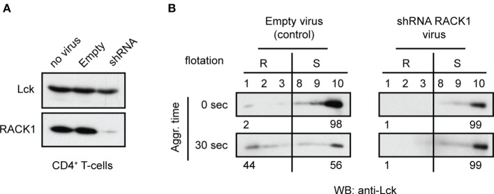 Adenovirus mediated knockdown of RACK1 impedes translocation of Lck to light DRMs . CD4 + T-cells from TgCAR transgenic mice were infected with either empty control virus (Empty) or with a mixture of adenoviral RACK1-targeting shRNA constructs (shRNA) or were not infected (no virus). (A) The effectiveness of RACK1 downregulation is shown 96 h after infection. Cells were harvested and probed with anti-Lck and anti-RACK1. (B) CD4 + T-cells infected with Empty virus (control) or shRNAs RACK1 virus were activated by TCR/CD4 co-aggregation (30 s), or not (0 s), and the redistribution of Lck to light DRMs was assessed. Raft (#1–3, R) and soluble (#8–10, S) fractions were probed with anti-Lck. Numbers represent relative distribution of Lck to these fractions. Blots are representative of two independent experiments.