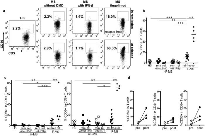Frequency of CD56 + T cells in healthy subjects (HS) and patients with multiple sclerosis (MS). ( a ) CD56 expression on CD3-gated T cells. Representative FACS dot plots of HS, MS patients without disease-modifying drug (MS without DMD), MS patients with IFN-β therapy (MS with IFN-β), and those with fingolimod therapy (MS with fingolimod) are shown. ( b ) The frequency of CD56 + cells in CD3 + T cells in the indicated groups. ( c ) The frequency of CD56 + cells in CD4 + T cells in the indicated groups (left), and that of CD56 + cells in CD8 + T cells in the indicated groups (right). ( d ) The frequency of CD56 + T cells before and after fingolimod treatment in MS patients. The frequency of CD56 + T cells within total T cells, and CD4 + and CD8 + T cell subsets is shown. nF-MS: multiple sclerosis patients without fingolimod therapy, F-MS: multiple sclerosis patients with fingolimod therapy, rem: remission, rel: relapse, rel-free: relapse-free. Bars represent median values. p-values: *p
