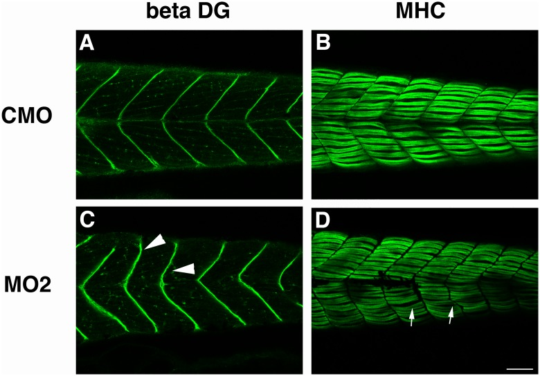Immunohistochemistry of skeletal muscle tissue of morpholino-injected fish. Immunostaining of CMO injected fish (A, B) and sil1 morphant (MO2) injected fish (C, D) with antibodies against beta-dystroglycan (beta-DG) (A, C) and myosin heavy chain (MHC) (B, D). Beta-dystroglycan expression at the myosepta of MO2 injected 4 dpf embryos is misshapen and has a less clear v-shaped structure. Staining with anti-MHC indicated that formation of myofibers is disturbed in MO2. Arrowheads indicate the disturbance of myosepta in MO2-injected fish. Bar: 100 μm. Arrows indicate the abnormal structure of myofibers.