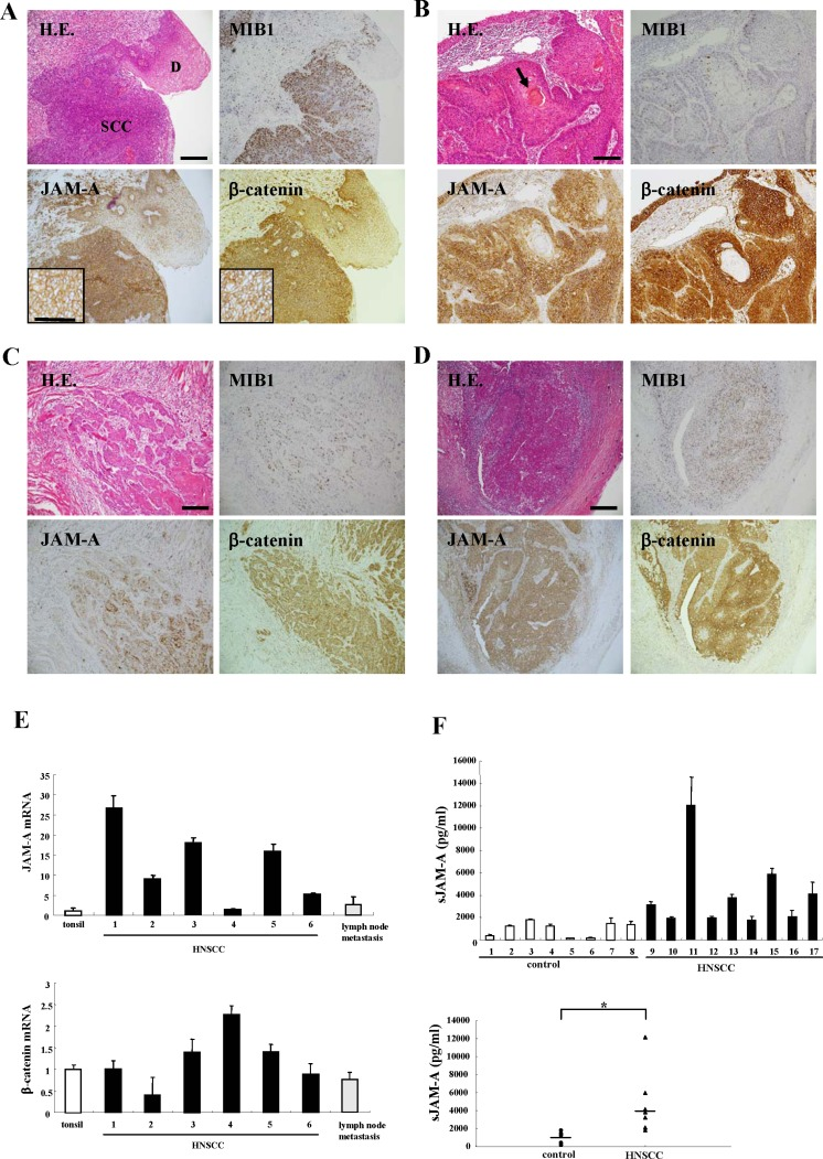 Images of H.E. and immunohistochemical staining of MIB1, JAM-A and β-catenin in tissues of HNSCC patients and dysplastic regions ( A ) HNSCC and dysplasia, ( B ) cancer pearl region, ( C ) invasive region, ( D ) metastatic lymph node. Bar: 100 μm. ( E ) Real-time PCR for mRNAs of JAM-A and β-catenin in tonsil and HNSCC-patient tissues. Results are given as means ± SE. ( F ) ELISA for soluble JAM-A in sera of HNSCC patients and healthy control subjects. Results are given as means ±SE. ( F ) p *