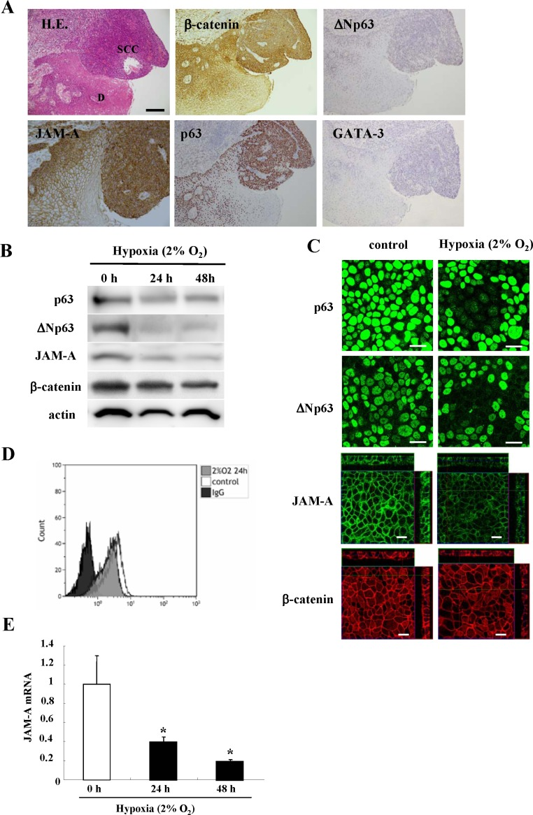 Images of H.E. and immunohistochemical staining (A) of JAM-A, β-catenin, p63, ΔNp63 and GATA-3 in HNSCC and dysplastic regions Bar: 100 μm. Western blotting ( B ) and immunocytochemical staining ( C ) for p63, ΔNp63, JAM-A and β-catenin and flow cytometry ( D ) for JAM-A in Detroit562 cells incubated under hypoxia (2% O 2 ). Bars: 20 μm. ( E ) Real-time PCR for JAM-A mRNA in Detroit562 cells incubated under hypoxia (2% O 2 ). Results are given as means ± SE. p *