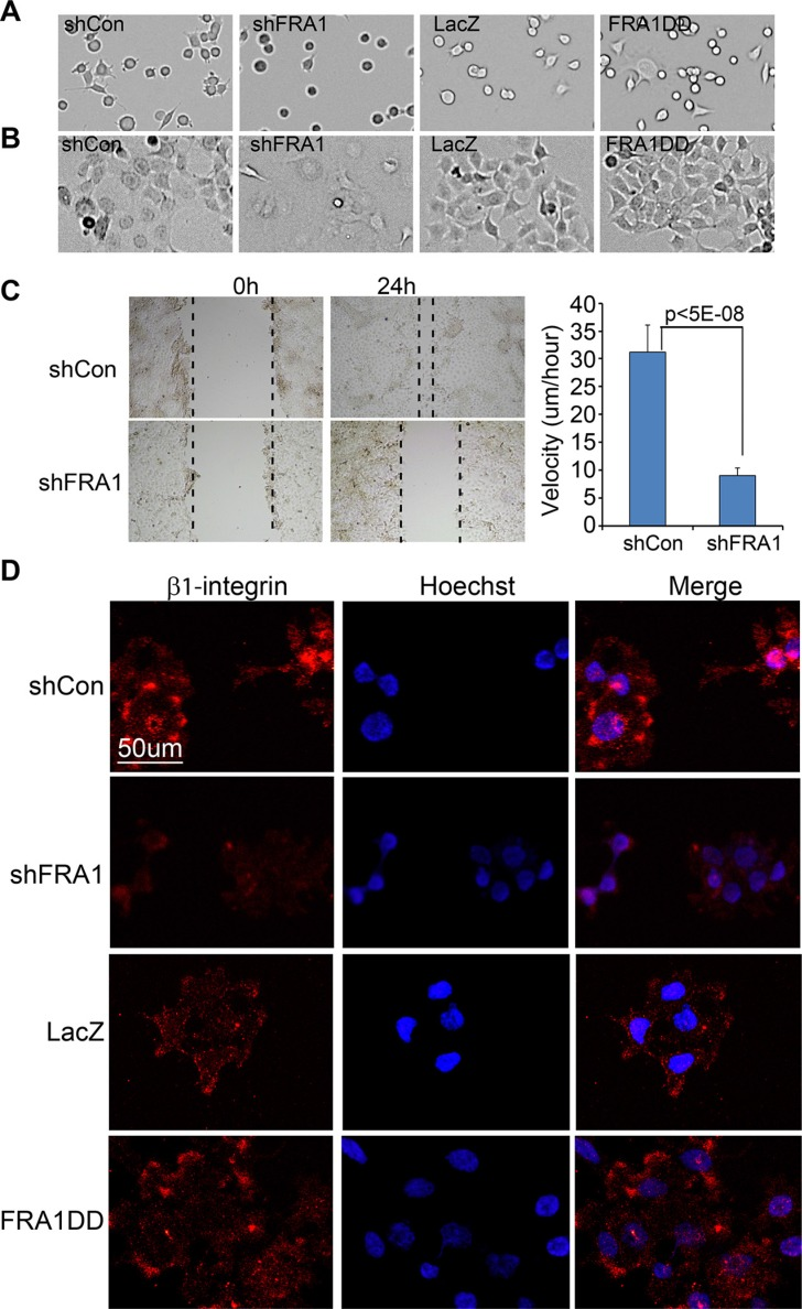 FRA1 promotes cancer cell adhesion and migration ( A – B ) Cell adhesion. FaDu cells transduced to express shCon, shFRA1, <t>LacZ</t> or FRA1DD were plated on 6-well dishes. Images of the attached cells were taken at (A) 1 h and (B) 24 h time-points. ( C ) Scratch-wound assay. FaDu cells transduced as above were grown to near confluence, and subject to 24 h serum starvation and then scratch-wounding. Images were taken under microscope at 0 h and 24 h time-points. Velocities were calculated under image J based on the real-time images taken between 10 h and 24 h time-points. Graph represents average velocity of 100 cells/condition + SD. ( D ) Immunostaining for cell surface <t>β1-integrin.</t> Fadu cells transduced to express shCon, ShFRA1, LacZ or FRA1DD were pre-incubated with serum free media at 37°C for 2 h and then incubated at 4°C with an antibody specific for active β1-integrin and subsequently with an Alexa 555-conjugated secondary antibody [orange] and counterstaining with Hoechst 33825 [blue].