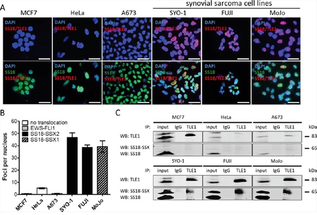 The proximity ligation assay demonstrates SS18-SSX/TLE1 co-localization selectively in synovial sarcoma cell lines SS18-SSX positive cell lines (SYO-1, FUJI, MoJo) demonstrate SS18-SSX/TLE1 proximity by visualization of fluorescent nuclear foci while control cell lines (MCF7, HeLa, A673) showed little nuclear staining A. The intensity of the nuclear signal was quantified and shown to be significantly greater in SS18-SSX confirmed-positive cell lines B. The SS18-SSX/TLE1 protein-protein interaction was confirmed to be specific for synovial sarcoma cell lines by co-immunoprecipitation C. Scale bars represent 20 μm. Error bars represent standard error of mean from three independent studies.