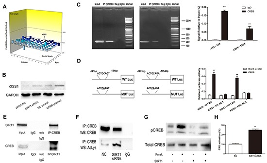SIRT1 regulates KISS1 expression through deacetylation of transcription factor CREB A. Gene expression profile array analysis in SW620 cells. Three-dimension (3D) profile of the expression values for mRNA of siRNA-SIRT1 cells versus siRNA-NC cells. B. Upregulation of KISS1 protein was detected when either knockdown of SIRT1 or overexpression of CREB by Western blot. C. ChIP assays for CREB and its binding motif. Antibodies anti-IgG and anti-CREB were used in the ChIP assays. QRT-PCR was performed to quantify the binding activity. D. KISS1 promoter constructs containing a potential CREB binding motif (−191 to −184 bp and −1961 to −1954 bp). The transcriptional activity of the KISS1 promoter was greatly increased after co-expression of CREB and KISS1 reporter in wild type. E. Endogenous SIRT1 immunoprecipitates with CREB. Proteins immunoprecipitated with rabbit IgG was used as control. F. Downregulation of SIRT1 increases the immunoprecipitated CREB levels detected using anti-acetyl lysine antibody. G. Western blot showing that SIRT1 overexpression suppresses forskolin-induced CREB-Ser 133 phosphorylation level. H. SIRT1 siRNA increases CRE transcriptional activity. Results are expressed as Luc/Renilla ratios. **P