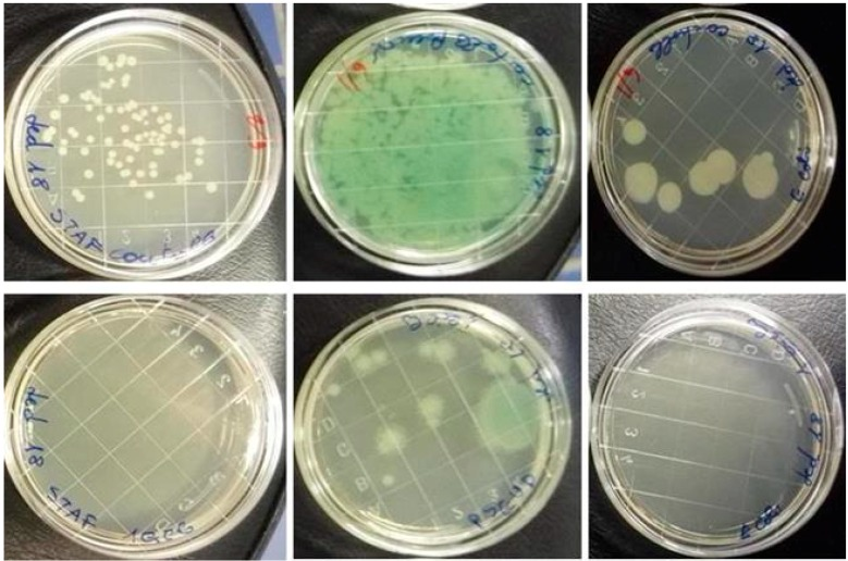 Examples of laboratory contamination before (above) and after (below) UVC treatment: on the left Petri dishes contaminated with Staphylococcus aureus , in the middle dishes contaminated with Pseudomonas aeruginosa , on the right dishes contaminated with Escherichia coli .