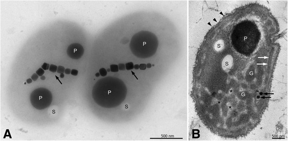 Ultrastructure of Mf. australis strain IT-1. Ultrastructure of Mf. australis strain IT-1. a Whole mount TEM image showing a single magnetosome chain, P-rich (P) and sulfur (S) granules; ( b ) <t>Ultrathin</t> section TEM image of high pressure frozen and freeze-substituted cells showing P-rich (P) and sulfur (S) granules, two magnetosomes ( black arrows ), a flagella bundle (F) associated with chemoreceptor array ( white arrows ), and a fibrillar layer at the cell surface ( arrowheads ). Uncharacterized globular structures (G) embedded in an electron-lucent material (asterisks) can be observed