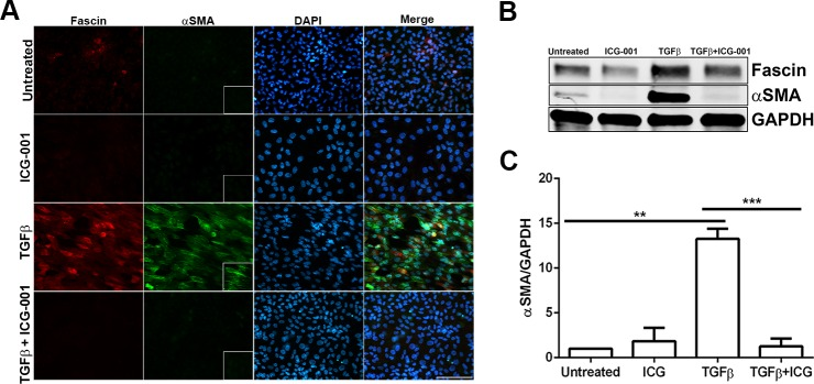 Effect of inhibition of β-catenin/CBP–dependent signaling by ICG-001 on TGF-β–induced EMT of lens explants. ( A ) Untreated, ICG-only, TGF-β2–only, and TGF-β2– and ICG-001-treated lens explants were immunostained for fascin and α-SMA. Slides were imaged using ×40 lens of Zeiss Apotome microscope and analyzed using Zeiss Zen software. Scale bar : 100 μm. ( B ) Western blot analysis for fascin, α-SMA, and GAPDH was carried out using protein lysates extracted from untreated, ICG-treated, TGF-β2–treated, and TGF-β2– and ICG-001-treated lens explants. ( C ) Densitometric quantification of α-SMA indicating fold reduction in α-SMA expression normalized to untreated lens explants ( n = 3, ** P