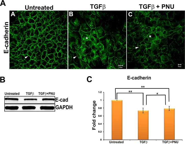 Effect on E-cadherin by inhibition of β-catenin/TCF interaction. ( A ) E-cadherin stained untreated, TGF-β2–treated, and TGF-β2– and PNU-cotreated LECs imaged using Zeiss LSM 510 confocal microscope. Scale bar : 10 μm. ( B ) Total protein from untreated, TGF-β2–treated, and TGF-β2– and PNU-cotreated LECs was subjected to Western blot analysis for E-cadherin and GAPDH ( n = 3). ( C ) Graph showing average relative density ± SD of E-cadherin normalized to untreated LECs ( n = 3, * P