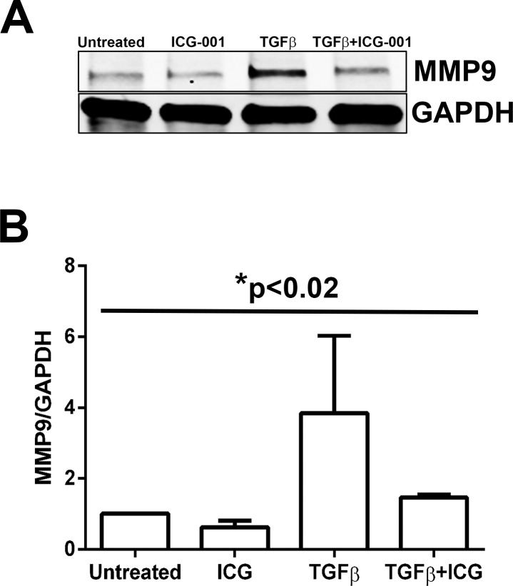 Inhibition of β-catenin/CBP interaction by ICG-001 prevents MMP9 expression. ( A ) Untreated, ICG-001–treated, TGF-β2–treated, and TGF-β2– and ICG-001–cotreated lens explants were subjected to Western blot analysis for MMP9 and GAPDH ( n = 3). ( B ) Graph representing the relative density ± SD of MMP9 normalized to untreated LECs ( n = 3, * P