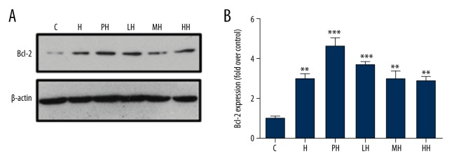 Effects of salidroside on expression of apoptotic signaling proteins Bcl-2 of PC12 cells in different incubation conditions. ( A ) BcL-2 protein was analyzed by immunoblot; ( B ) The relative quantification of Bcl-2 in each group by corresponding internal control and the intensity of the band of control group. (* P