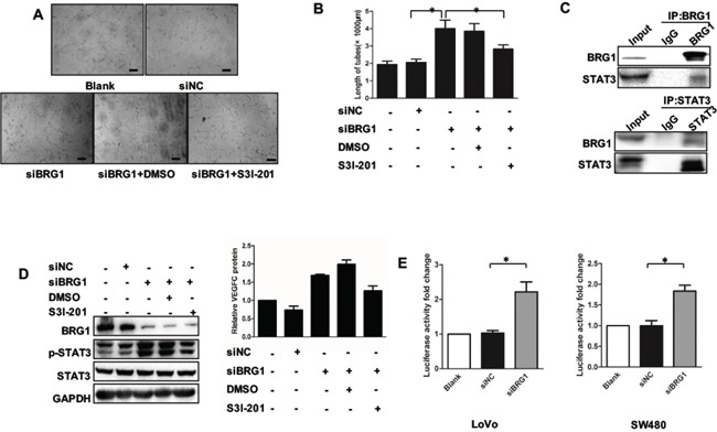 BRG1 regulation of STAT3/VEGFC signaling mediates lymphangiogenesis A. Representative images and quantifications B. of tube formation of human lymphatic endothelial cells (HLECs) cultured with conditioned medium derived from LoVo cells. DMSO was used as vehiche control. Scale bars: 50μm. C. Immunoprecipitation using anti-BRG1 or anti-STAT3 antibodies was performed in LoVo cells, followed by immunoblotting with the indicated antibodies. D. (Left) Western blot analysis of BRG1, STAT3, p-STAT3 expression after transfection with siNC and siBRG1 in the presence or absence of S3I-201 (STAT3-specific inhibitor) in SW480 cells. (Right) Quantitative expression analysis of VEGFC protein levels by ELISA in the supernatants of SW480 cells after transfection with siNC and siBRG1 in the presence or absence of S3I-201 (STAT3-specific inhibitor) in SW480 cells. * p
