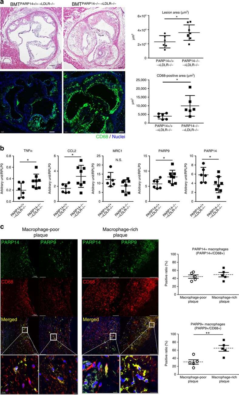 Haematopoietic PARP14 in mouse atheromata and PARP9–PARP14 expression in human plaques. ( a ) Representative image and quantification of aortic root lesion formation and CD68+ macrophage accumulation (green, Alexa 488) in high-fat and high-cholesterol diet-fed LDLR −/− mice whose bone marrow was reconstituted by PARP14 −/− mice (BMT PARP14 −/−→ LDLR −/− mice, n =5), compared with LDLR −/− mice with PARP14 +/+ bone marrow (BMT PARP14 +/+→ LDLR −/− mice, n =6–7). Scale bars, 100 μm. ( b ) mRNA expression of the aorta from a . n =6–8. ( c ) Immunofluorescence staining of PARP14 and PARP9 proteins (green, Alexa 488) in human carotid plaques. CD68 (red, Alexa 594). Nuclei (blue, 4,6-diamidino-2-phenylindole, DAPI). Scale bars, 100 μm; insets, 10 μm ( n =5). Prevalence of PARP14+ or PARP9+ macrophages in macrophage-poor versus macrophage-rich plaques. * P