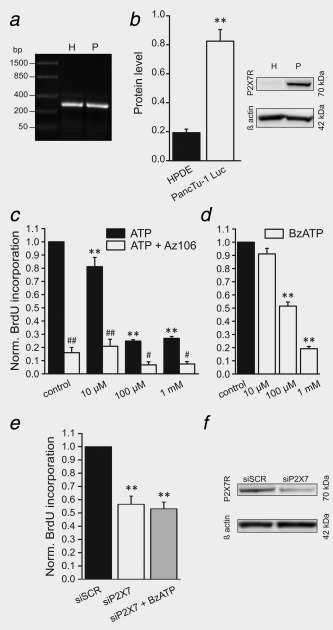 Expression of P2X7R and cell proliferation with ATP, AZ10606120 and BzATP. ( a ) Representative gel of P2X7 mRNA expression (284 bp) in HPDE (H) and PancTu‐1 Luc (P) cells ( n = 3). ( b ) Western blot on the whole cell lysates with polyclonal C‐terminal antibody for P2X7R shows the A isoform (70 kDa). β actin (42 kDa) was used as loading control ( n = 4). Bar graph shows the level of P2X7R protein as a ratio to β actin. Significant difference in comparison to HPDE cells p