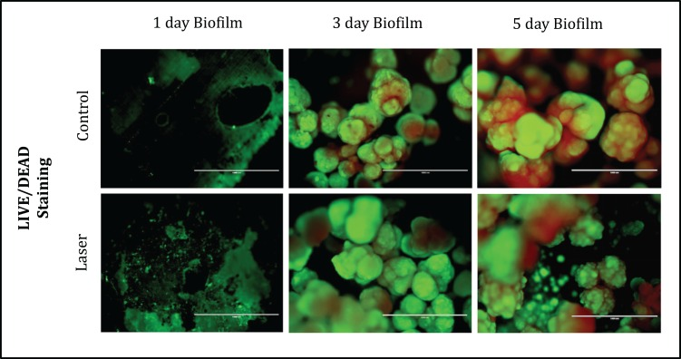 Fluorescence Microscopy showing representative images of bacteria in biofilms after 1, 3 and 5 days of biofilm. Multidimensional imaging of live (green) and dead (red) bacteria.