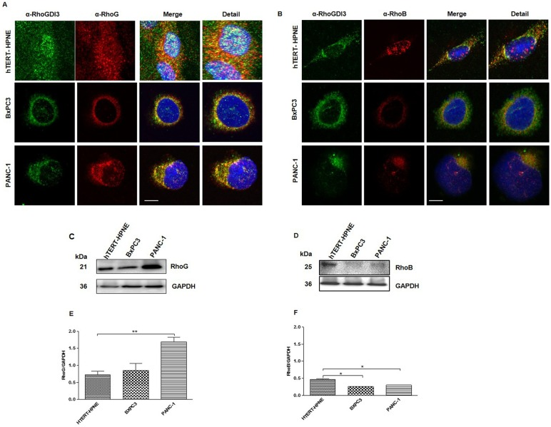 The expression of RhoG and RhoB proteins is altered in cancerous pancreatic cell lines. Immunofluorescence microscopy analysis of RhoGDI3 protein (green); RhoG (A) and RhoB (B) (Red) and Nuclei (DAPI, blue) of hTERT-HPNE (upper panel), BxPC3 (middle panel) and PANC-1 (bottom panel) cells lines. Representative Immunoblot using antibodies anti-RhoG (C), anti RhoB (D), GAPDH was used as loading control. Total lysates from hTERT-HPNE, BxPC3 and PANC-1 cell lines were analyzed. Total amount of RhoG (E) and RhoB (F) proteins was normalized to GAPDH (n = 3). Immunoblot densitometric analysis was performed with Image Lab software. Values are means ± SEM, **P