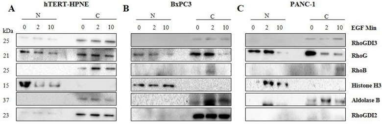 Nuclear localization of RhoGDI3 in rhEGF treated hTERT-HPNE cells. Subcellular fractionation was performed after cells were treated with rhEGF (marked above the images as 0, 2 and 10 rhEGF Min). Nuclear (N) and cytosolic (C) fractions from hTERT-HPNE (A), BxPC3 (B) and PANC-1 (C) cell lines were obtained and analyzed by immunoblotting, using anti-RhoGDI3, anti-RhoG, anti-RhoB antibodies. Anti-histone H3 antibody was used as a nuclear control and anti-Aldolase B antibody was used as a cytosol control. 20 μg of cell lysates were loaded.