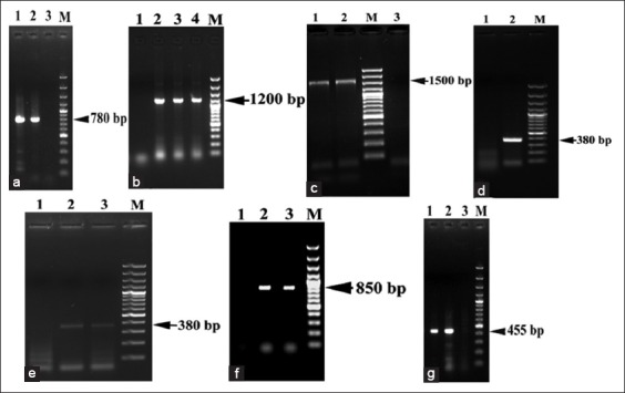 Molecular identification of tick species ( Rhipicephalus sanguineus and Hyalomma dromedarii ) by polymerase chain reaction products of the five DNA markers detected in 1.5% agarose gels stained with ethiduim bromide. In all figures Lane M: 100 bp DNA ladder, Lane 1 or 3: Control negative. (a) Lane 1 present 780 bp amplicon of 18S rRNA gene of R. sanguineus , while Lane 2 present 780 bp amplicon of 18S ribosomal ribonucleic acid (rRNA) gene of H. dromedarii , (b) 1200 bp amplicons of Second Internal transcribed spacer (ITS2) of R. sanguineus , (c) 1500 bp amplicons of ITS2 of H. dromedarii , (d and e) 380 bp amplicon of 12S rRNA gene of both R. sanguineus and H. dromedarii , (f) Lane 2 present 850 bp amplicon of cytochrome c oxidase subunit-1 (CO1) gene of R. sanguineus , while Lane 3 present 850 bp amplicon of CO1 gene of H. dromedarii , (g) Lane 1 present 455 bp amplicon of 16S rRNA gene of R. sanguineus , while Lane 2 present 455 bp amplicon of 16S rRNA gene of H. dromedarii .