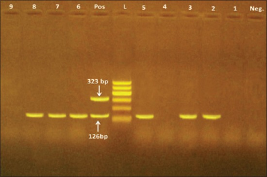 Multiplex-polymerase chain reaction of Campylobacter jejuni and Campylobacter coli strains isolates from raw milk, Kareish cheese and yoghurt samples. Lane (POS): Positive control. Lane (Neg): Negative control. Lane (L): 100 bp ladder as DNA marker. Lanes 2, 3, 5, 6, 7, 8 are positive for C. jejuni only. Lanes 1, 4, 9 are negative for both C. jejuni and C. coli . Lane 2: The strain gave a weak hippurate reaction.