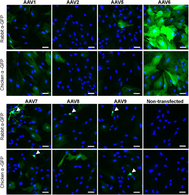Transduction of primary rat astrocytes with seven different rAAV-green fluorescent protein (GFP) viruses. Astrocytes were transduced with 10 5 gc/cell of either rAAV1, rAAV2, rAAV5, rAAV6, rAAV7, rAAV8, or rAAV9, or treated identically without the addition of virus (non-transfected), for 48 h. Results for rAAV1, rAAV2, rAAV5, and rAAV6 are shown in the top two rows and results for rAAV7, rAAV8, rAAV9 and non-transfected astrocytes are shown in the bottom two rows. Cells were stained with either rabbit or chicken anti-GFP antibodies, as indicated, and counterstained with 4′,6-diamidino-2-phenylindole dihydrochloride (DAPI) to visualize GFP-negative cells. Images were acquired using a confocal Zeiss LSM510 META microscope at 250× magnification, in the same cell preparation with identical exposure settings. Scale bar = 50 μm. Arrowheads point to cells with non-astrocytic morphology that were transduced with rAAV. Results are representative of at least nine wells and four independent experiments per transduction condition.