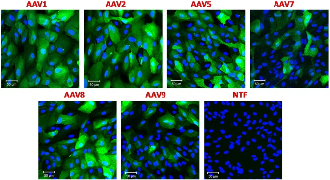 Transduction of immortalized human retinal pigmented epithelial cell line (ARPE-19) with six different rAAV serotypes. ARPE-19 cells were transduced with 10 5 gc/cell of either rAAV1, rAAV2, rAAV5, rAAV7, rAAV8, or rAAV9, as indicated, for 72 h. Infected cells were visualized with rabbit anti-GFP antibodies, and counterstained with DAPI. Control non-transfected cells (NTF) were processed at the same time and in the same fashion. Images are representative of three replicates and were captured using Zeiss LSM510 META confocal microscope at identical exposure settings at 250× magnification. Scale bars = 50 μm.