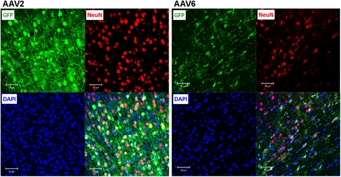 Assessment of the ability of rAAV2 and rAAV6 to transduce neurons in the rat cortex. Slices were stained for GFP as a marker of viral transduction (green), the neuronal marker NeuN (red), and DAPI (blue). The bottom right images in each set show overlay of all three signals, with shades of yellow representing colocalization (at this magnification it is not obvious in some cells due to differences in signal intensities and cellular location). Z-stack images were taken using Zeiss LSM510 META confocal microscope at 250× magnification and identical exposure settings. Scale bars = 50 μm. Images are representative of at least 12 sections from four different rats for each virus.