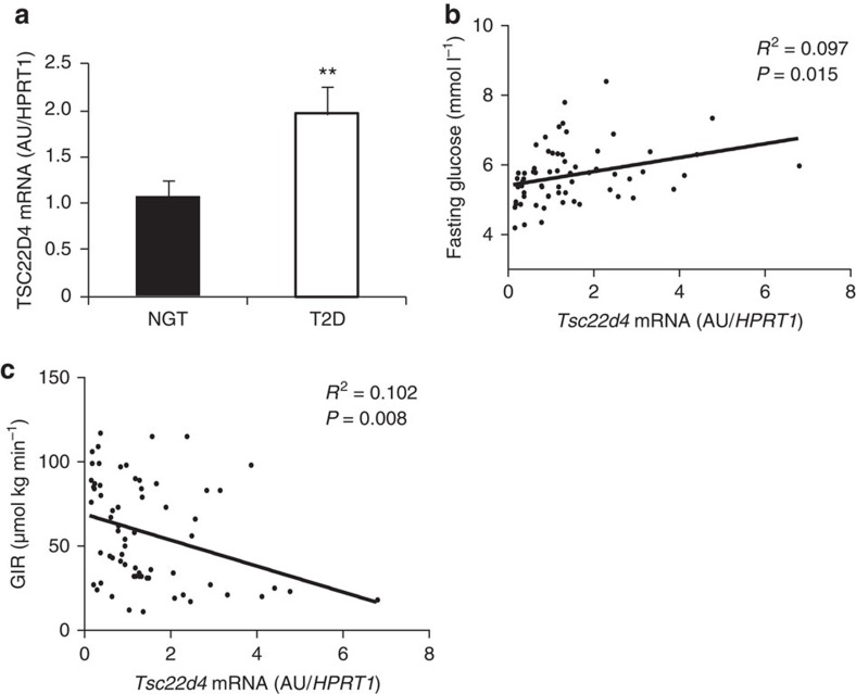 TSC22D4 levels correlate with insulin sensitivity in humans. ( a ) Quantitative PCR analysis of Tsc22d4 mRNA expression in livers of patients with type 2 diabetes (T2D, n =26) or normal glucose tolerance (NGT, n =40) Error bars indicate standard error of the mean (s.e.m.). ( b ) Correlation of hepatic expression of Tsc22d4 mRNA and fasting plasma glucose in the same patients as in a . ( c ) Correlation of human liver expression of Tsc22d4 mRNA and glucose infusion rate (GIR) during hyperinsulemic-euglycaemic clamp study in the same patients as in a . Statistical analysis for a : Student's t -test, b and c : Pearson correlation coefficient, * P ≤0.05; ** P ≤0.01; *** P ≤0.001.