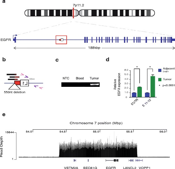Characterisation of a somatic L1 mutation within EGFR.  a  Patient #8 EGFR mutant allele: a 0.5kbL1-Ta sequence antisense to EGFR. Direction of transcription is indicated with  blue arrow .  b  L1 mutation magnified view: RC-seq reads detected at the L1 3' terminus ( black/red bars ). The L1 mutation comprised a truncated fragment of L1 ORF2 ( white box ) and the 3′UTR without a poly-A tail ( red box ). A 550 nucleotide deletion at the integration site was also identified (triangle). Primers used for PCR validation are indicated as pink and purple arrows.  c  Mutation site PCR validation: Region comprising the EGFR-L1 5' junction was detected in patient #8 tumour sample. No amplification was detected when water (NTC) or genomic DNA from blood were used as template.  d  qRT-PCR measurement of EGFR transcription at its 5'UTR and exon 11-to-12 junction (E 11–12): The relative levels of RNA from both regions were significantly increased in tumour ( blue ) versus adjacent brain ( green ) samples. Data for each group were normalised to adjacent brain values, pooled and presented as mean +/− SEM (* p