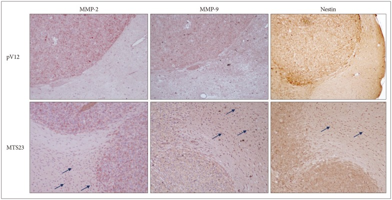 MMP-2 and -9 were highly expressed on marginal region and tumor cells infiltrated the normal brain (arrow) in MTS23 group, while those in the control group were expressed on tumor, but not on normal region. And tumor cells were identified by immunohistochemistry for <t>Nestin.</t> MMP : <t>metalloproteinases.</t>