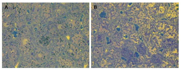 Liver histology in linagliptin-treated db/db diabetic mice. Heterogeneity of the changes of hepatocytes: A: Microvesicular lipid accumulation (L); B: No lipid accumulation. Light microscopy with yellow filter of semi-thin sections stained with toluidine blue; magnification × 1000.