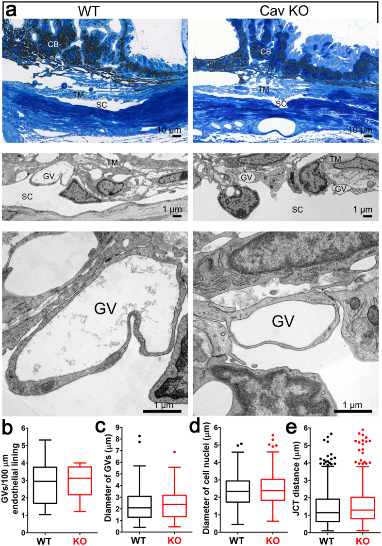 Morphological and ultrastructural analyses of Cav-1 −/− conventional outflow pathway. ( a ) Semithin sections (Richardson's stain) through the iridocorneal angle of representative control ( upper left panel ) and Cav-1 −/− ( upper right panel ) eyes. Middle and lower panels in ( a ) show higher magnifications by transmission electron microscopy (TEM). The chamber angle is open in control and Cav-1 −/− eyes while obvious abnormalities of ciliary body (CB), trabecular meshwork (TM), and Schlemm's canal (SC) are absent. At higher magnification ( middle and lower panels ), giant vacuoles (GV) are detectable in both genotypes. ( b–e ) Quantitative ultrastructural analyses of control and Cav-1 −/− eyes. No significant differences in the number of GVs ( b ) or their sizes ( c ) were observed. ( d ) Endothelial nuclei diameter, a measurement of endothelial thickness, was not significantly different between genotypes. ( e ) The JCT depth was also not significantly different between Cav-1 −/− and control eyes. Eyes from 4 Cav-1 −/− mice and 7 littermate controls were used for these quantitative analyses. Numbers of GVs were quantified in 86 non-overlapping images from Cav-1 −/− eyes and 151 images from controls. Giant vacuole diameter measurements were made on 74 Cav-1 −/− and 107 control GVs. Endothelial cell nuclei diameters were measured from 118 Cav-1 −/− and 155 control nuclei. The depth of the JCT was measured at seven locations in each image for a total of 490 and 735 measurements in Cav-1 −/− and control eyes, respectively. For a schematic on how these measurements were made, see Supplementary Fig. 2 .