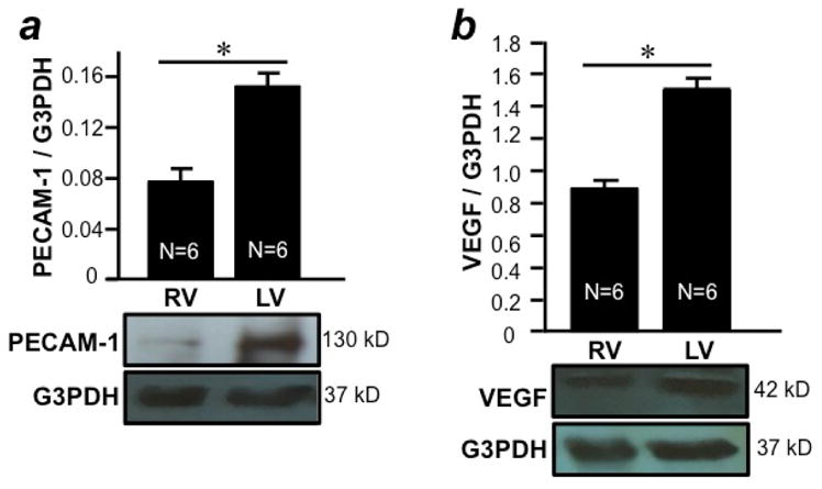 Differential expression of angiogenesis markers in the RV and LV free walls RV and LV free walls were isolated from male SD rats and homogenized. Homogenates were subjected to Western blotting to monitor the expression of (a) PECAM-1 and (b) VEGF proteins. Bar graphs represent means ± SEM of the ratio of PECAM-1 or VEGF to G3PDH. The symbol * denotes that RV and LV values are significantly different from each other at P