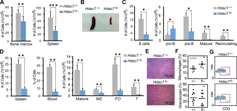 HDAC7 is required for early B cell development. (A) Absolute numbers of total bone marrow cells ( Hdac7 fl/− [ n = 6] and Hdac7 +/− [ n = 8]) and total spleen cells ( Hdac7 +/− [ n = 12] and Hdac7 fl/− [ n = 9]). (B) Representative photograph of the spleen from Hdac7 +/− and Hdac7 fl/− mice. (C) Absolute numbers of bone marrow B220 + B cells ( Hdac7 fl/− [ n = 5] and Hdac7 +/− [ n = 8]), B220 + CD43 + IgM − pro–B cells ( Hdac7 fl/− [ n = 5] and Hdac7 +/− [ n = 8]), B220 + CD43 − IgM − pre–B cells ( Hdac7 fl/− [ n = 6] and Hdac7 +/− [ n = 6]), B220 + IgM + immature B cells ( Hdac7 fl/− [ n = 7] and Hdac7 +/− [ n = 9]), and B220 + IgM + IgD + mature recirculating B cells ( Hdac7 fl/− [ n = 7] and Hdac7 +/− [ n = 9]). (D) Graph on the left shows the absolute numbers of B220 + B cells from spleen of Hdac7 +/− ( n = 12) and Hdac7 fl/− ( n = 9) mice. Graph in the middle shows the percentage of B220 + cells in the blood from Hdac7 +/− ( n = 4) and Hdac7 fl/− ( n = 4) mice. Graph on the right shows absolute numbers of spleen B cell subsets from wild-type and HDAC7-deficient mice: B220 + IgM + IgD + mature B cells ( Hdac7 +/− [ n = 7] and Hdac7 fl/− [ n = 5]), CD21 bright CD23 + marginal zone (MZ) B cells ( Hdac7 +/− [ n = 12] and Hdac7 fl/− [ n = 9]), and CD21 + CD23 bright CD93 − follicular (FO; Hdac7 +/− [ n = 9] and Hdac7 fl/− [ n = 7]) and CD21 + CD23 bright CD93 + transitional (T; Hdac7 +/− [ n = 8] and Hdac7 fl/− [ n = 7]) B cells. (E) Hematoxylin and eosin staining of the spleen from Hdac7 +/− and Hdac7 fl/− mice. (F) Percentages of granulocytes and macrophages from the spleen of Hdac7 +/− ( n = 9) and Hdac7 fl/− ( n = 7) mice. Mean values are shown as horizontal bars. ns, not significant. (G) Representative FACS analyses from three independent experiments are shown on T lymphocytes from the spleens of Hdac7 +/− and Hdac7 fl/− mice. FSC, forward scatter. Data are represented as the mean ± SEM. Statistical significances were identified using the unpaired two-tailed St