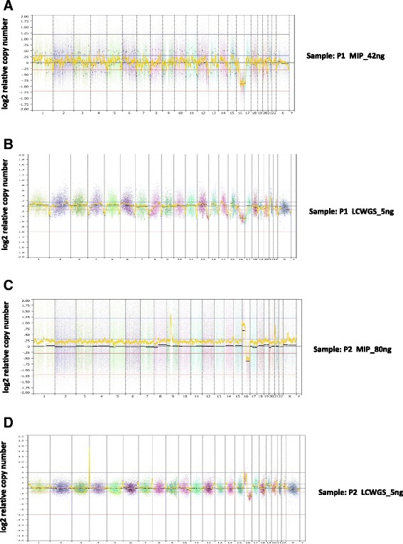 CN profiles for two breast pre-cancerous samples (P1 ( a , b ) and P2 ( c , d )). a , c MIP arrays in the range of 40–80 ng input of <t>DNA.</t> b , d LC <t>WGS</t> from 5 ng input of DNA. Each data point in ( b ) and ( d ) represents normalized read count ratios from a 50 kb window. Segments were removed from highly repetitive or problematic regions [ 8 ]