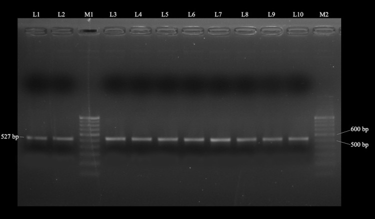 Agarose gel electrophoresis of specific <t>PCR-amplified</t> products from ten HytaNPV isolates. Lanes M 1 and M 2, 100 bp Ladder <t>DNA</t> marker (Genei, Bangalore); Lane L1 : SMB, L2 : LKP, L3 : KRB, L 4: TLP, L5 : KML, L6 : WSB, L7 : BRD, L 8: RJB, L9 : BGP and L10 : AMB isolate, respectively. The size of the band is shown in bp (base pair)