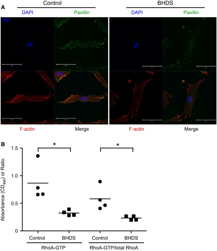 Organization of actin stress fiber, the association of actin with paxillin, and <t>RhoA</t> activity are decreased in BHDS lung fibroblasts. (A) Representative confocal images of phalloidin and paxillin staining in lung fibroblasts are shown; the results of BHDS lung fibroblasts isolated from patient 2 harboring c.769_777del TCC (exon 7) mutation are presented. The immunofluorescence staining was performed in both control ( n = 4) and BHDS ( n = 4: patients 2, 7, 10, and 11). Scale bars: 50 μm in each panel. (B) The levels of <t>GTP</t> ‐bound RhoA (Rho‐ GTP ) and Rho GTP /total RhoA ratio are decreased in BHDS lung fibroblasts ( n = 4: patients 2, 7, 10, and 11) as compared with those of control lung fibroblasts ( n = 4) (* P