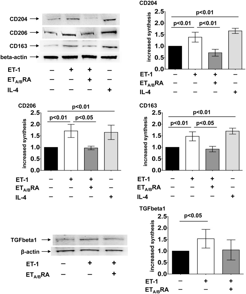 Evaluation of protein synthesis of M2 phenotype markers and TGFbeta1 in cultured human monocyte-derived macrophages. Western blotting and related densitometric analysis of CD204, CD206, CD163 and TGFbeta1 protein synthesis in cultured human monocyte-derived macrophages treated for 6 days with ET-1 (100nM) and IL-4 (10ng/mL) alone, or pre-treated with ET A/B RA (bosentan, 10 -5 M) for 1 hour before being stimulated with ET-1. Cultured human monocyte-derived macrophages maintained for 6 days in RPMI at 10% of FBS were used as untreated cells. Western blotting was performed on six independent in vitro experiments. The data of CD204, CD206, CD163 and TGFbeta1 protein synthesis are shown as mean±SD and indicated as increase in protein synthesis.