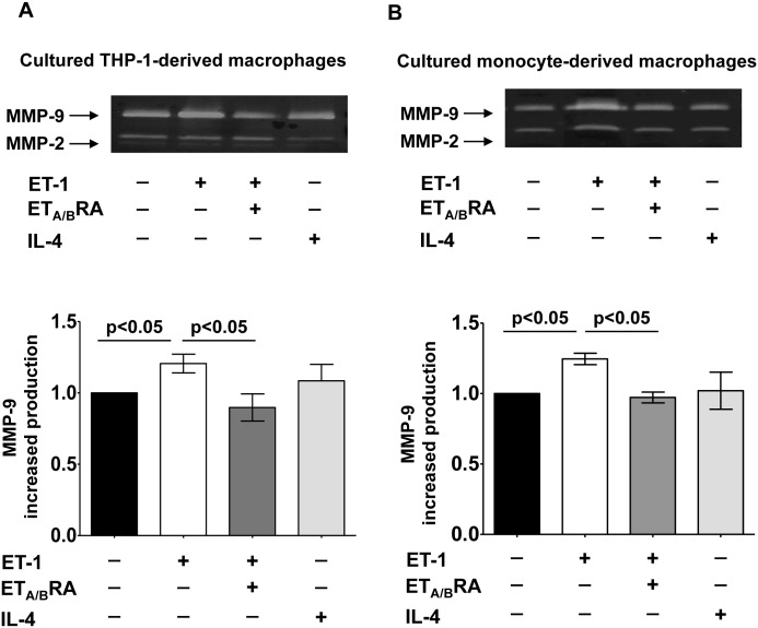 Evaluation of pro-fibrotic MMP-9 production in cultured macrophages. Evaluation by gel zymography of MMP-9 production and related densitometric analysis in cultured M0-macrophages and human monocyte-derived macrophages. (A) Cultured M0 macrophages were treated for 72 hours with ET-1 (100nM) and IL-4 (10ng/mL) alone, or pre-treated with ET A/B RA (bosentan, 10 -5 M) for 1 hour before the stimulation with ET-1. Cultured M0 macrophages maintained for 72 hours in RPMI at 5% of FBS were used as controls (M0-controls). (B) Cultured human monocyte-derived macrophages treated for 6 days with ET-1 (100nM) and IL-4 (10ng/mL) alone, or pre-treated with ET A/B RA (10 -5 M) for 1 hour before the stimulation with ET-1. Cultured human monocyte-derived macrophages maintained for 6 days in RPMI at 10% of FBS were used as untreated cells. Gel zymography was performed on six independent in vitro experiments and the data of MMP-9 production are shown as mean±SD.