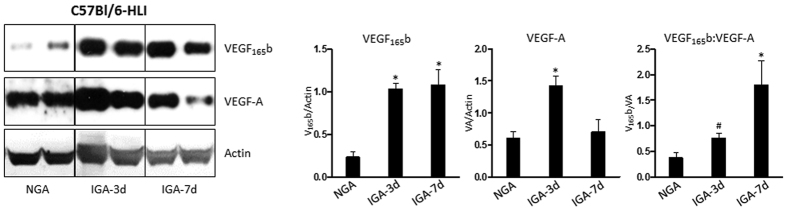 Western blot analysis of VEGF 165b , VEGF-A and Actin in non-ischemic (NGA) and ischemic gastrocnemius muscle (IGA) at day 3 and day 7 post hindlimb ischemia (HLI). (n = 4. One-way ANOVA with Dunnetts post-test. p