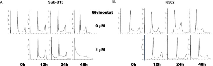 Induction of apoptosis by Givinostat on leukemia cell lines The induction of apoptosis measured by sub-G0/G1 fractions by flow cytometry in cells of A. SUP-B15 and B. K562 treated with Givinostat (1mM). The cultured cells were stained with PI (see Materials and methods) at 0 to 48hrs of incubation with Givinostat. Data were one of three representative tests (Detailed data were summarized in Table 1 ). PI, Propidium Iodine. Fractions were analyzed using software Mod-Fit.