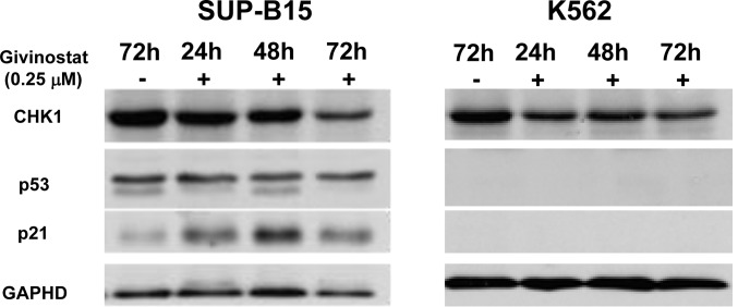 Detection of expressions of CHK1, p53, and p21 in leukemia cells Western blotting of cultured cells treated with or without Givinostat (0.25μM) to reveal p53 integrality in SUP-B15 (left) and K562 (right) at 24 to 72hrs. GAPDH: Glyceraldehyde-3-Phosphate Dehydrogenase.