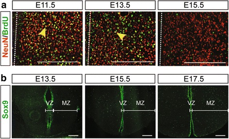 Progression of neurogenesis and gliogenesis in the tuberal hypothalamus of CD1 wildtype mice. a P0 brain sections of <t>BrdU</t> birthdating studies indicating the neurons, marked by <t>NeuN,</t> that were born at E11.5, E13.5 and E15.5 embryonic time points during neurogenesis in the tuberal hypothalamus. Yellow arrows indicate examples of NeuN+/BrdU+ co-labeled neurons, third ventricle location is highlighted with a white dotted line. b Sox9+ glioblasts in the tuberal hypothalamus at E13.5, E15.5 and E17.5. Scale bars equal 200 μm